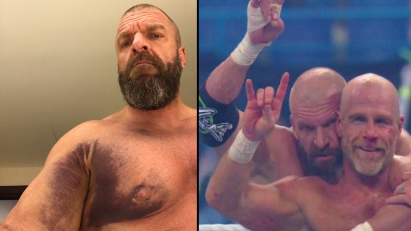 Triple H Shares A Grim Picture After Ripping His Pectoral Muscle