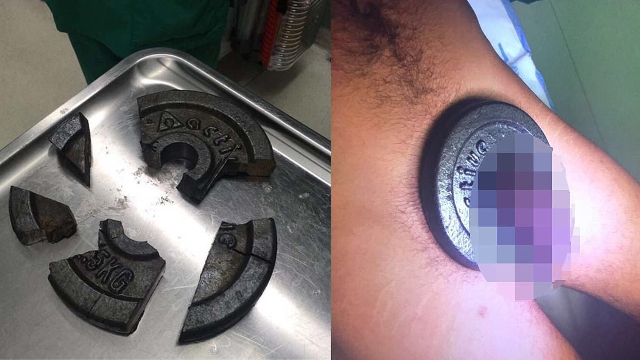 Man's Willy got stuck in Gym weight plates, Need to call firefighters for Help